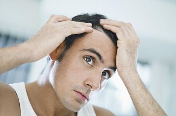 Stres, saçkıran yapıyor