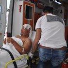 Üzerine zift dökülen işçi ağır yaralandı