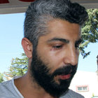 Gaziantep'te sağlık çalışanı doktoru darp etti