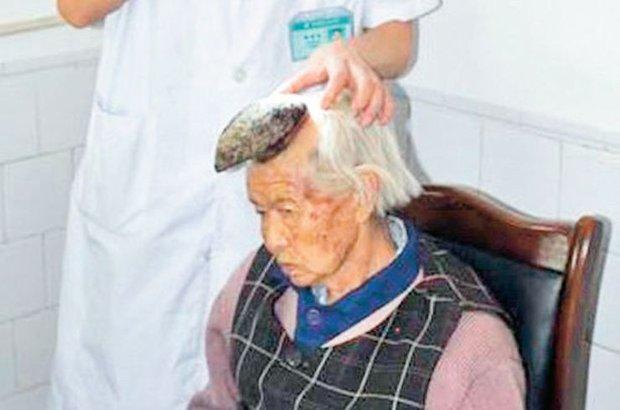 87 yaşındaki Çinli boynuzdan kurtuldu