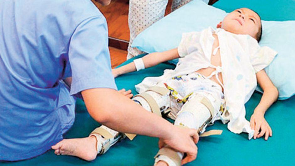 6 yaşındaki çocuğa 3 boyutlu yazıcıyla ameliyat