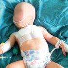 Bebeğe işkenceyi izmarit çözecek