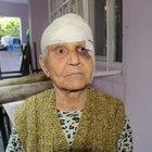 80 yaşındaki komşusunun kafasında ütüyü 5 parçaya böldü