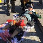 Ankara'daki patlamada 'canlı bomba' şüphesi