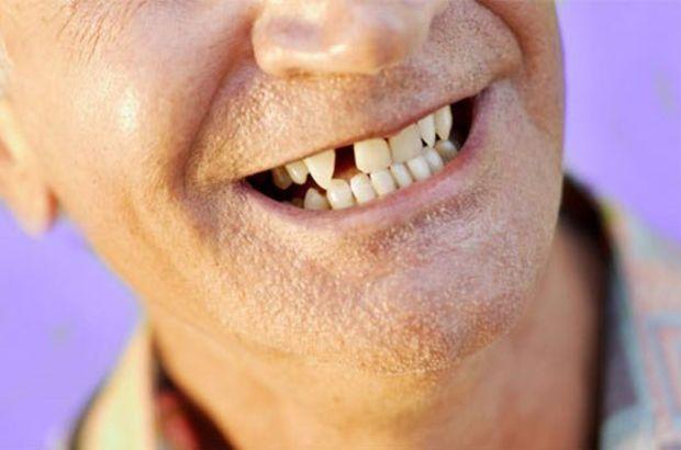 Diş eksikliği, Doç. Dr. Birkan Özkan, implant