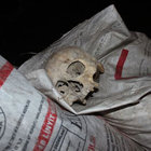 Uşak'ta çöp konteynerinde kafatası bulundu
