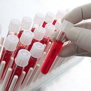 Bilim insanları yapay kan üretti!