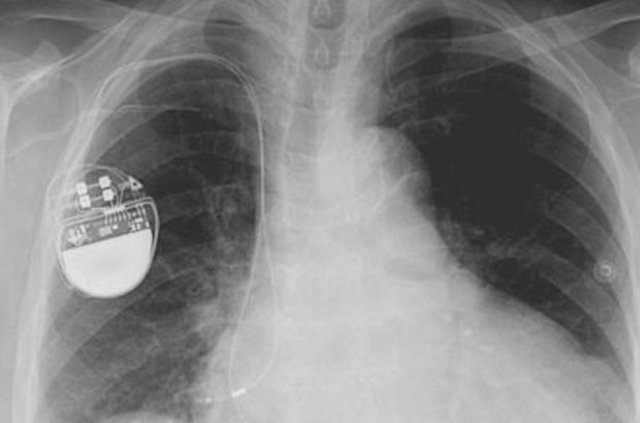 Sağlıklı bir kalp için neler yapılmalı?