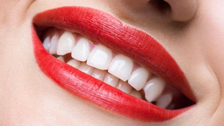 Çapraşık dişler
