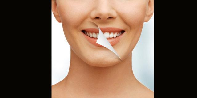 Evde diş beyazlatmak nasıl mümkün olur?