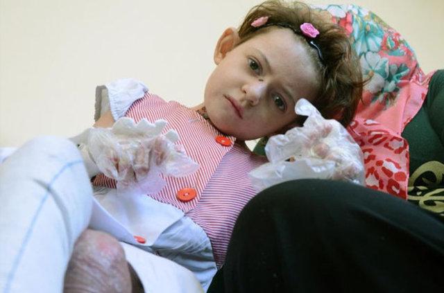 Kamu Hastaneler Birliği'nden kelebek hastası Fatma Gül açıklaması