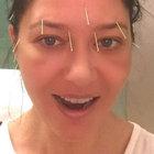 Nurgül Yeşilçay akupunktur tedavisine başladı