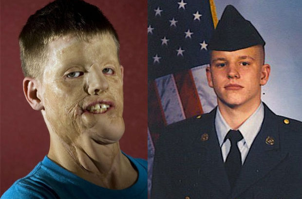 Amerikalı asker 20 den fazla ameliyat geçirdi