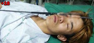 Tayland'da bir kişi zıpkınla kendini gözünden vurdu!