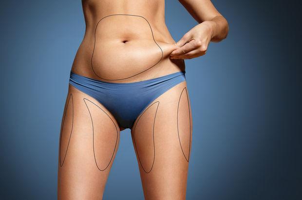 Liposuction kimlere yapılır?