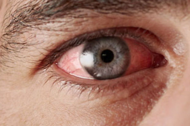 Kırmızı göz neyin habercisi?