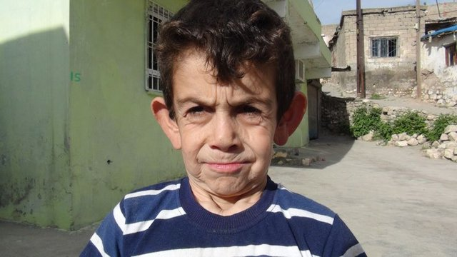 8 yaşındaki Mehmet Adem Abdulmecit erken yaşlanma hastası!