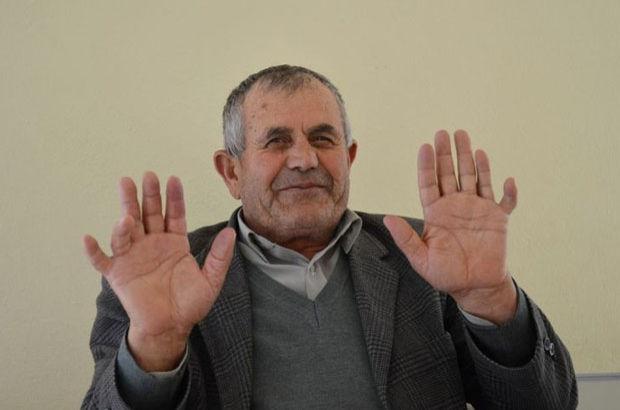 Denizli'de 24 parmaklı Ali İhsan Özdemir herkesi şaşırtıyor