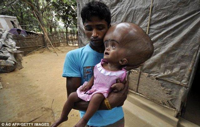 Bangladeş'te yaşayan minik Emon'un kafası tam 9 kilo
