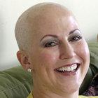 ABD'de kız kardeşler 2 hafta arayla kanser oldular