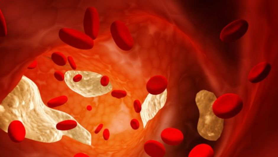 Kolesterol kalp hastalığına yol açar mı?