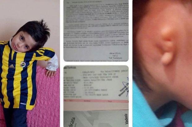 Doğuştan bir kulağı olmayan Çetin Eray'ın ameliyat olması gerekiyor