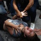 Adana'da bayılan arkadaşının yüzüne şişe fırlattı