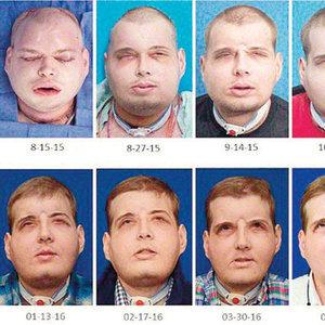 İşte dünyanın en kapsamlı yüz ameliyatı!