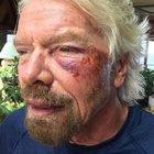 Richard Branson kaza geçirdi