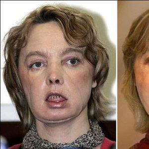 İlk yüz nakilli kadının ölüm nedeni ortaya çıktı!