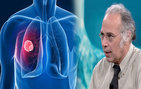Kanserliyi ilaçlar mı öldürüyor?