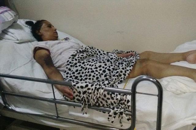 Kocasına kızıp mide ameliyatı olan Ebru Çoban hayatını kaybetti