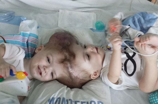 Kafalarından yapışık ikizler ameliyatla ayrıldı