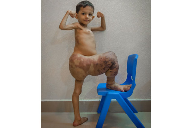 Bacağı olması gerekenin dört katı! Tedavisi ise yok! -