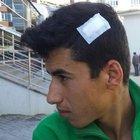 Suriyeli grup arasında çıkan kavgada bir çocuk yaralandı