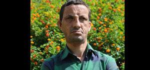 Yüz nakilli Acar'a 'cinayet' davası