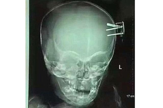 Olmayacak şey oldu, bebeğin beynine fiş saplandı!