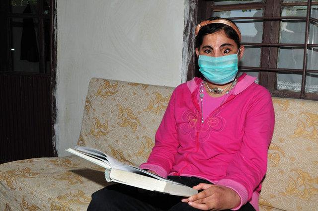 Türkiye'de yüz nakli olan ilk kadın Hatice Nergis öldü!