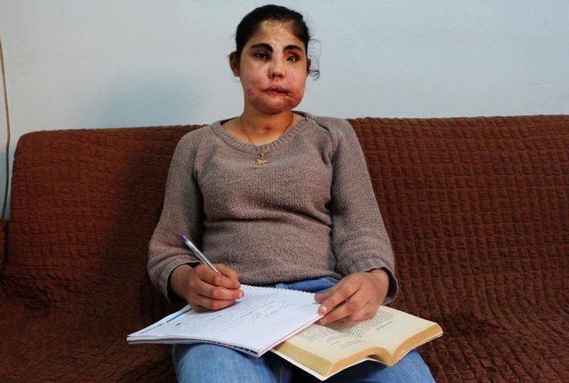 Türkiye'de yüz nakli olan Hatice Nergis hayatını kaybetti!