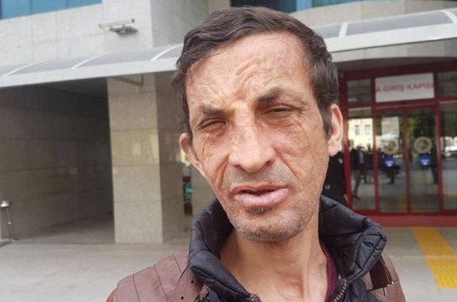 Yüz nakilli Uğur Acar Ramazan Kaya'nın ölümüyle ilgili davada ifade verdi