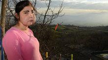 Türkiye'de yüz nakli olan ilk kadından kötü haber!