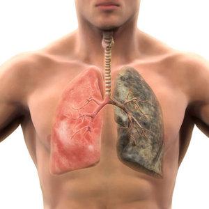 İşte akciğer kanserinin belirtileri...