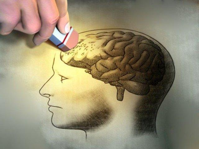 Alzheimer hastalığında çarpıcı gerçek!