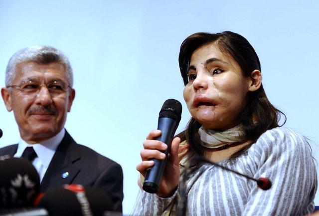 Prof. Dr. Selahattin Özmen: Benim için çok ciddi bir sürpriz oldu, çok üzüldük