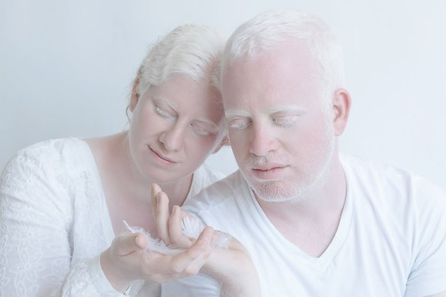 Albinoların eşsiz güzellikleri fotoğraflara yansıdı
