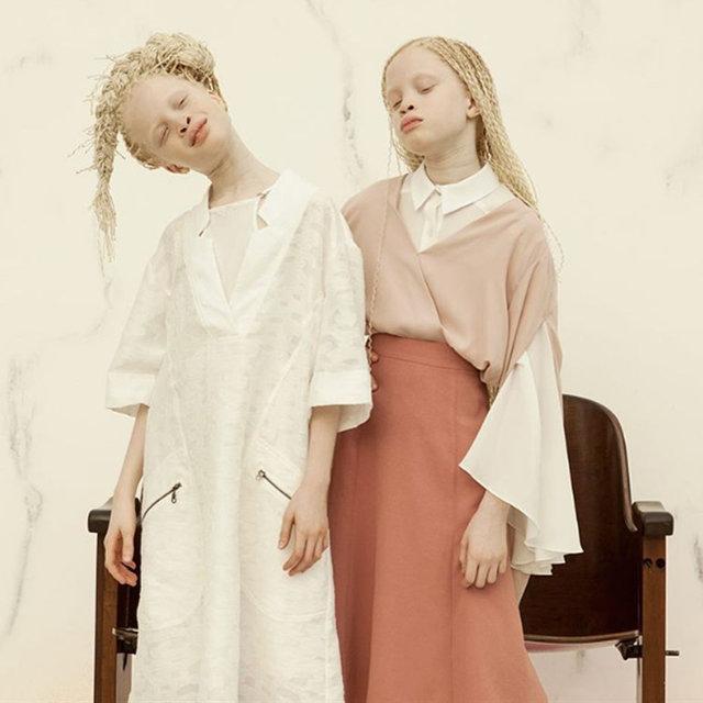Albino ikizlerin eşsiz güzellikleri fotoğraflara yansıdı