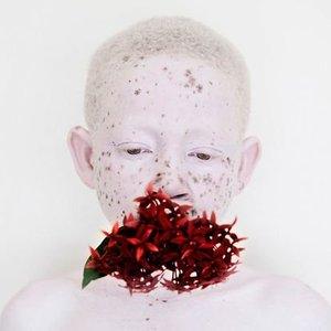Albino ikizler ile ablalarının farklılığı böyle şaşırttı!