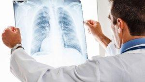 Uzmanlardan elektronik sigara açıklaması