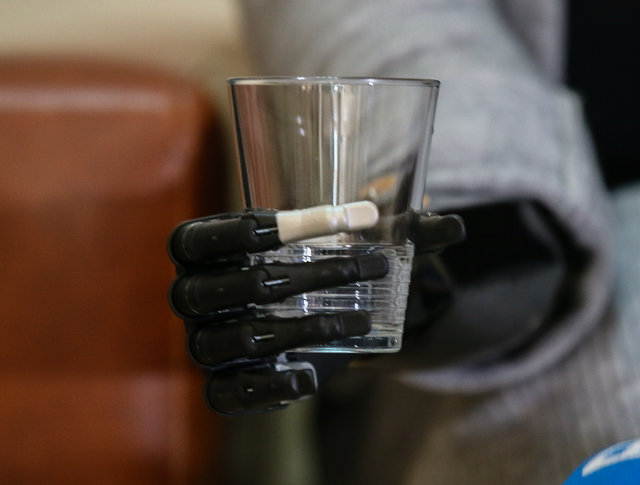 Zübeyde Nisa Karabacak Biyonik eliyle hayata üçüncü kez dokundu