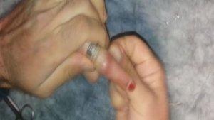 Parmağına sıkışan yüzüğü itfaiye ekipleri çıkarttı